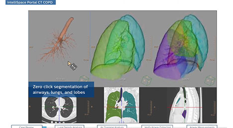 ct copd youtube video thumbnail