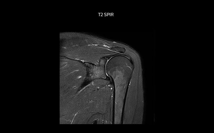 Shoulder MRI with high quality, T2 SPIR