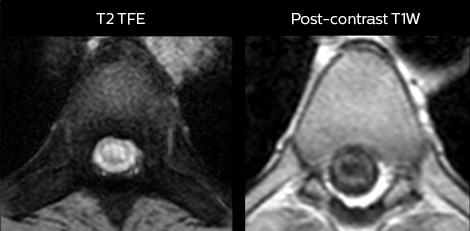 mri in ed myelopathy axial
